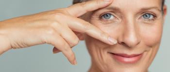 Confira os tratamentos estéticos mais recomendados para a região dos olhos