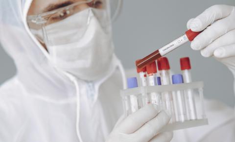 Araraquara registra 83 novos casos de coronavírus nas últimas 24 horas
